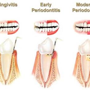 Ce este boala parodontala?