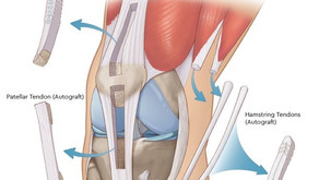 Best Graft Option for ACL Reconstruction Surgery