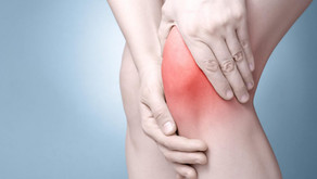 Knee Osteoarthritis (OA): Common Questions