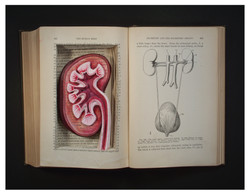 Conditions of Health (Kidney)