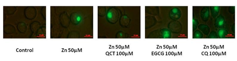亜鉛イオノフォアによる亜鉛の細胞内への浸透観察_Husam Dabbagh