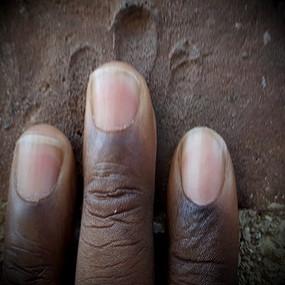 Fingerprints in Bricks
