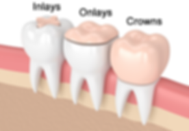 Dental office inlays and onlays.png