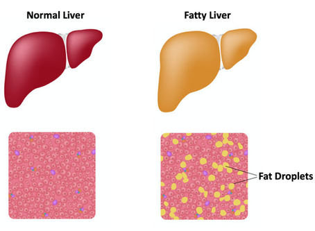 Fatty Liver: When Food Has the Power to Reverse Disease      by Sara Bowling, MD