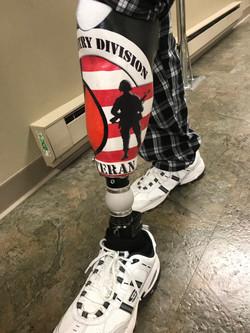 Custom leg for veteran
