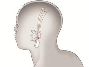 Neuralink: implante cerebral está sendo testado em porcos