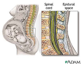 epidural-space-adam.jpg