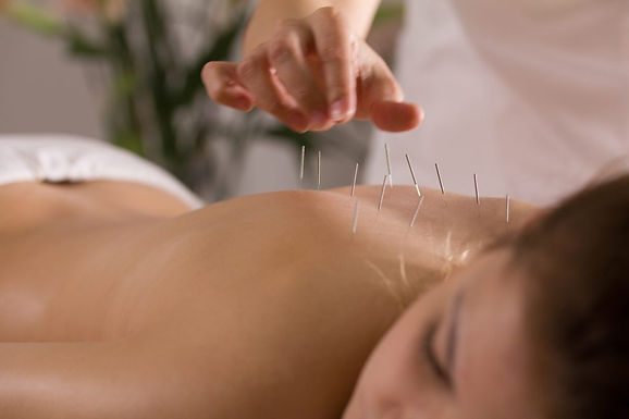 Total Wellness Acupuncture visit