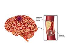 ischemic stroke.png