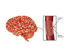 hemorrhagic stroke.png