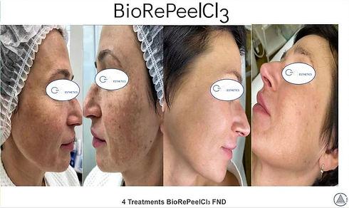 BioRePeel1 image 2.jpg