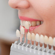 Dental Esthetics