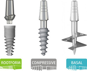 One day implant