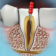Odontotherapy-Endodoncy