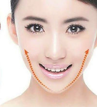 FACELIFTING WITHOUT SURGERY