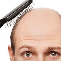 new-cure-for-baldness-ftr.jpg
