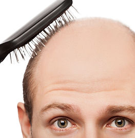 new-cure-for-baldness-ftr.jpg