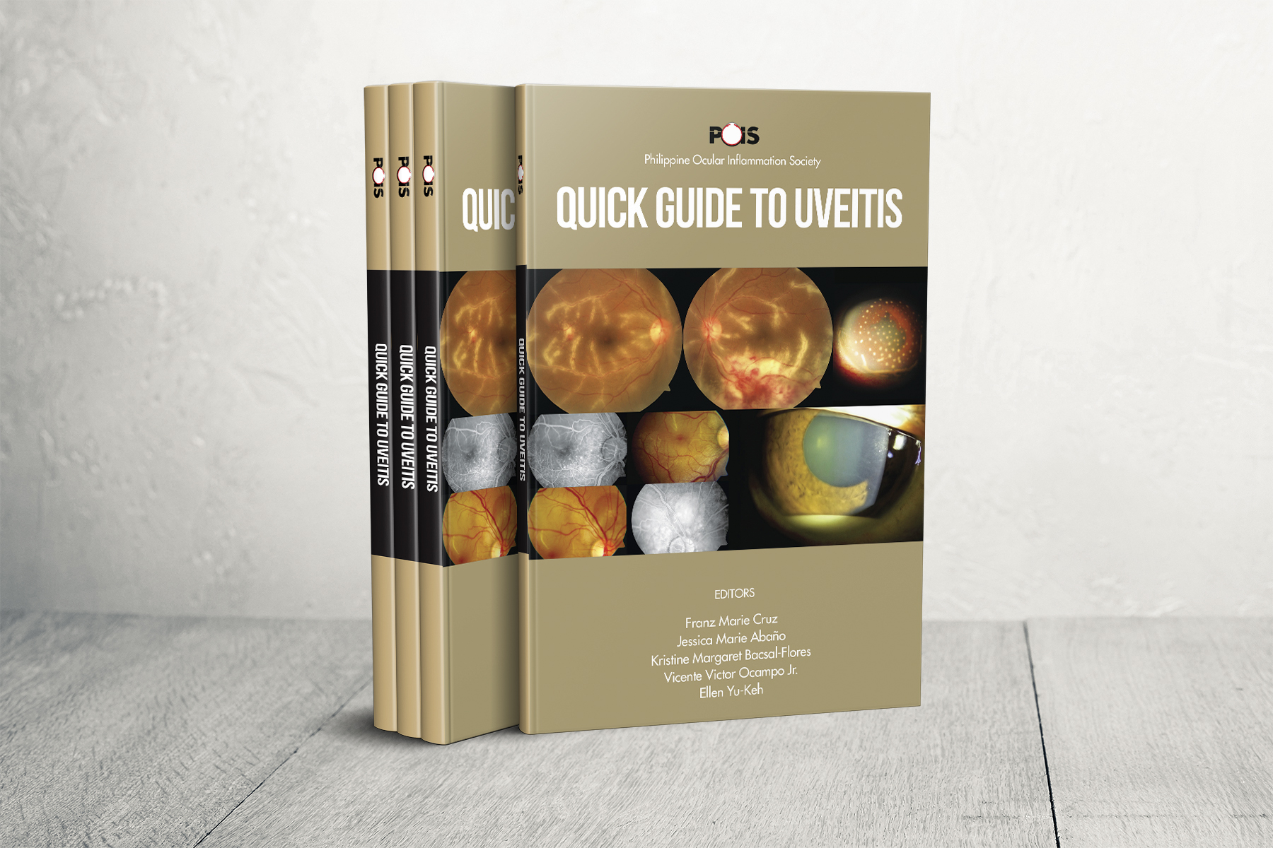 POIS Quick Guide to Uveitis Handbook