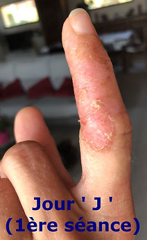Eczéma suintant aux mains, somatopathie