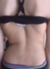 Scoliose de 40° passée inaperçue, somatopathie