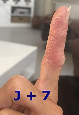 Eczéma suintant aux mains à J+7 en somatopathie