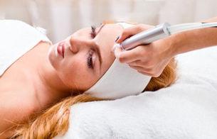 Diamantpeeling im Gesicht einer Frau im Kosmetikstudio
