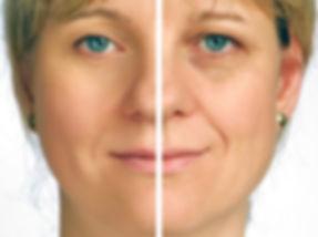 Hautverjüngung Vorher/Nachher