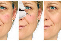 Geplatentfernente Äderchen (Couperose) im Gesicht einer Frau bei beautymedix in Eutin entfernen
