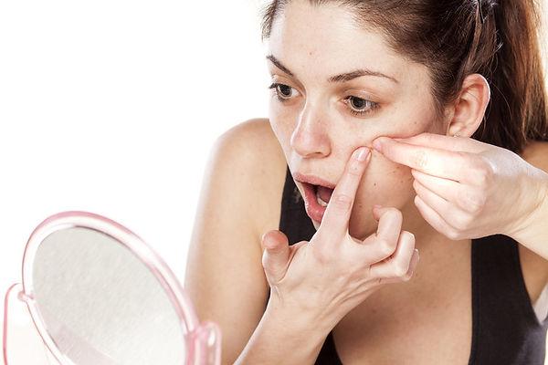 Aknebehandlung mit den modernsten Methoden der medizinische  Kosmetik.