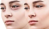 Augenringe behandeln in Lübeck