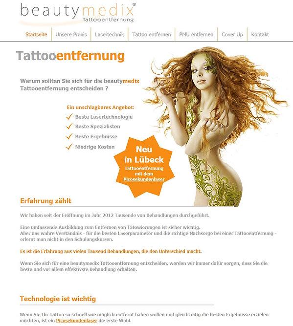 Tattooentfernung in Lübeck bei beautymedix