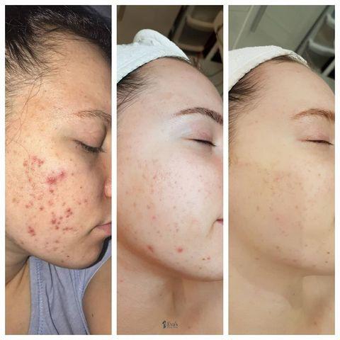 acne3-ebr (1).jpg