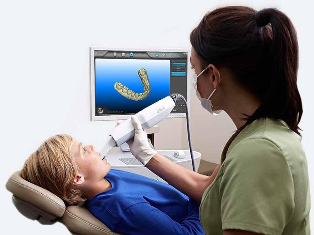 Hunstad Dentistry Utilizes iTero Scanner