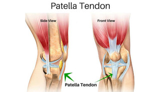 Patella Tendinitis and The Life Of The Young Athlete
