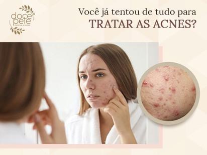Você já tentou de tudo para tratar as acnes?