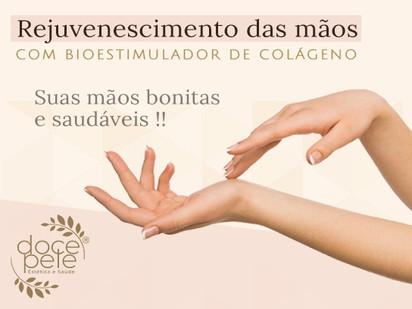Rejuvenescimento das mãos com Bioestimulador de Colágeno!