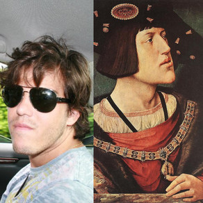 My Habsburg Jaw