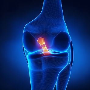 ACL Tear, Knee Pain, Sports Injury, Dr. Justin Chronister