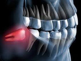 siso terceiro molar