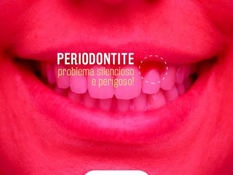 Sangramento na gengiva? Dor ao escovar? Dentes amolecem? Alguns sintomas silenciosos da Periodontite