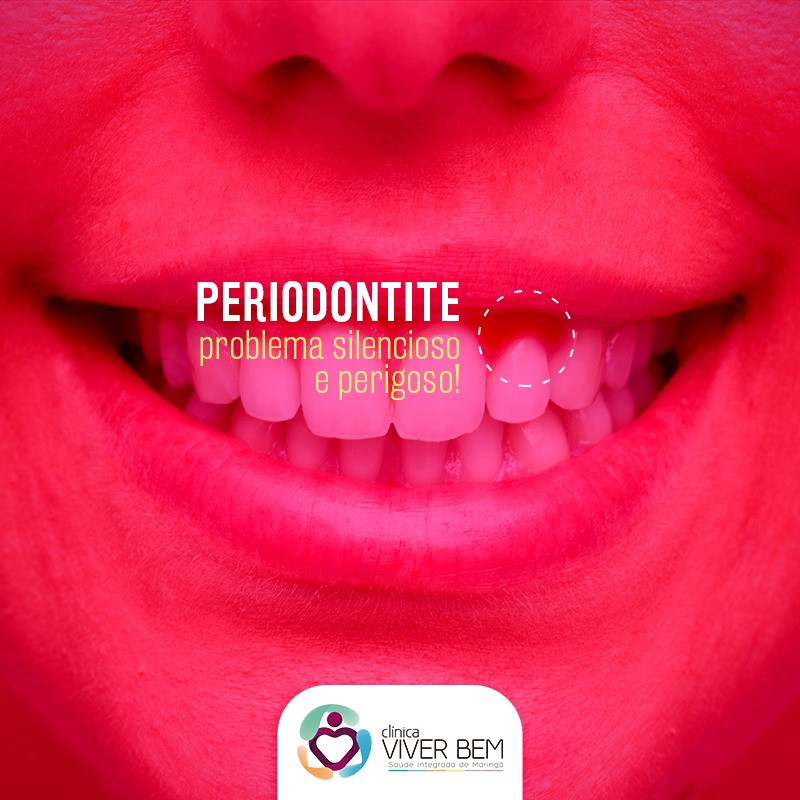 periodontite inflamação na gengiva