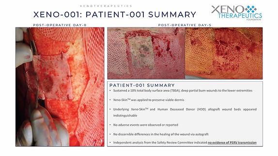 MKT_Patient 1-3 SUMMARY 1155_6AUG20_KR_P