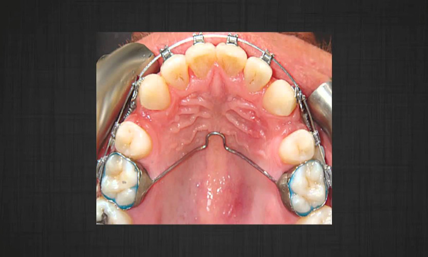 Effect of micro-osteoperforations on the rate of tooth movement