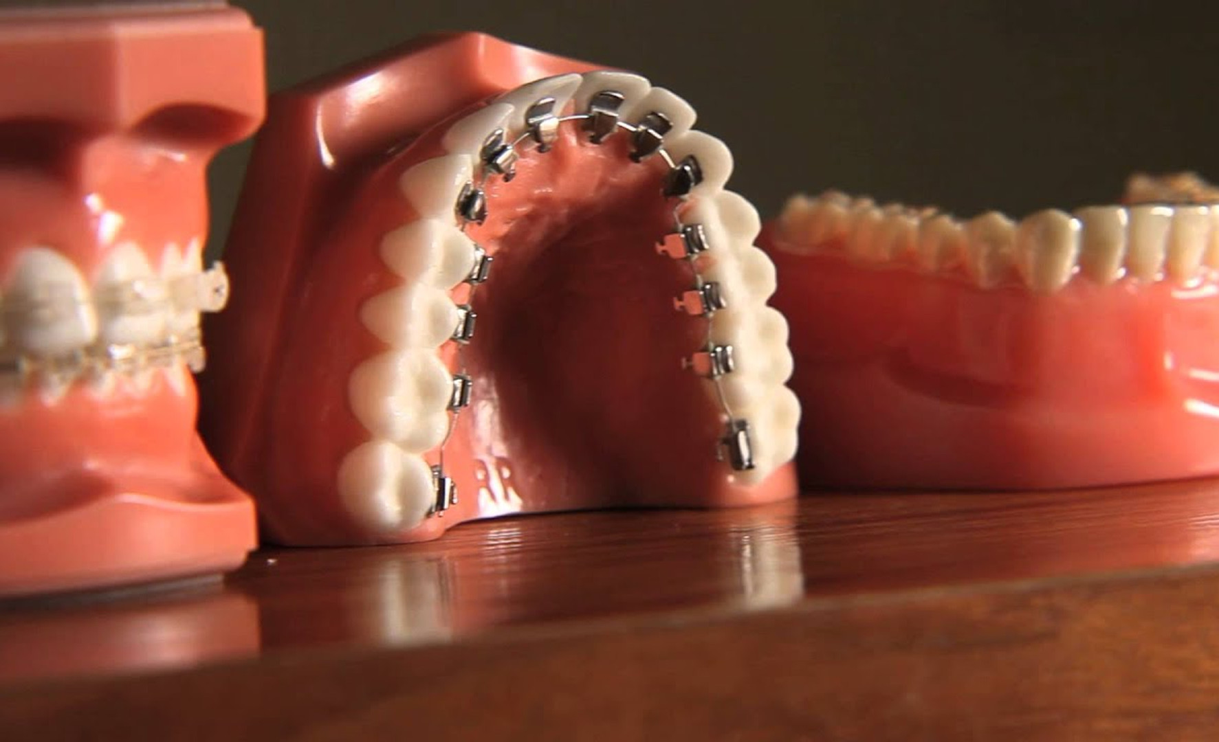 AAO presents: Braces Are Far More Attractive Than Crooked Teeth