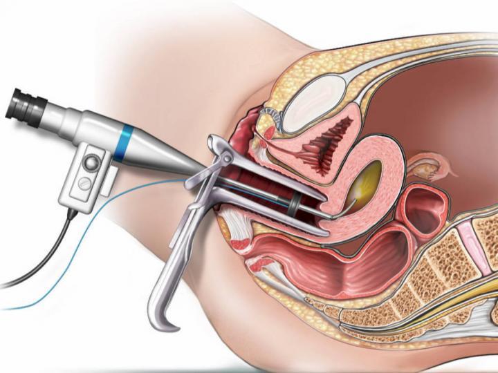 Histeroskopi Hakkında Bilinmeyenler