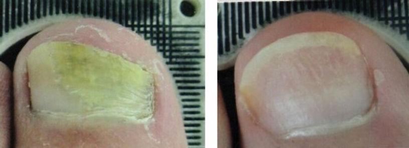 Nagelsvampbehandling laser
