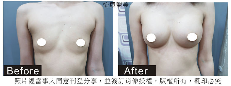 手術隆乳.jpg