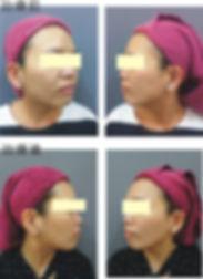 皮秒 肉毒瘦小臉(遮眼).jpg