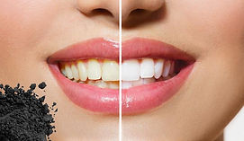 Whithening_Teeth_1024x1024.jpg