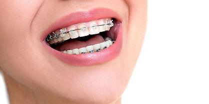 Ortodontia.jpeg